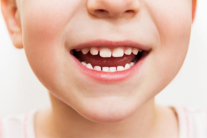Kinder-Zahnputz-Event