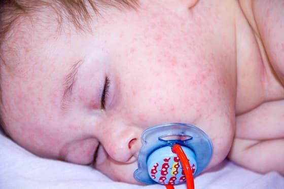 Baby und Allergien