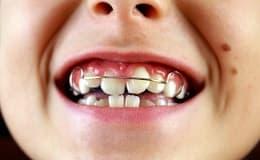 Mit Konsequenz zu schönen Zähnen