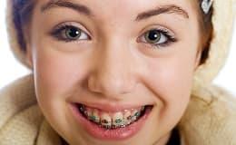Zahnregulierung: Freunde fürs ganze Leben